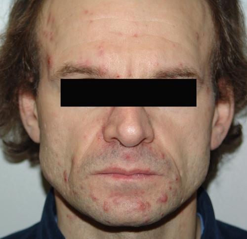 Аспириновая маска от черных точек на лице